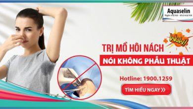 tri-mo-hoi-nach-noi-khong-phau-thuat